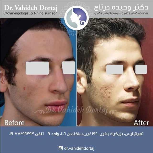 دکتر درتاج جراح بینی